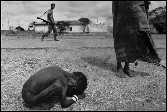 Somalia, 1992 - Child starved by famine, a man-made weapon of mass  extermination.